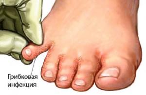 Грибок ногтей на ногах лечение йодом отзывы