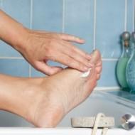 Лечение грибка ног. Советы по лечению в домашних условиях