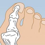 Заболевание – бурсит большого пальца на ноге. Лечение без операции