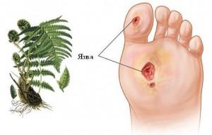 Трофические язвы на ногах схема лечения