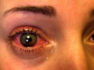Сколько стоят обычные линзы для зрения