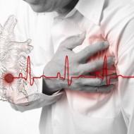 Первые признаки инфаркта у мужчин. Симптомы болезни.