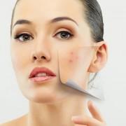 Эффективные и недорогие мази от прыщей на лице – на что обратить внимание?