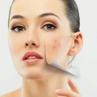 Эффективные и недорогие мази от прыщей на лице — на что обратить внимание?