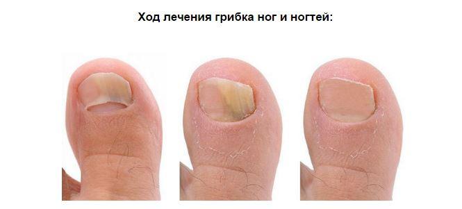 Чем вывести грибок на ноге между пальцев