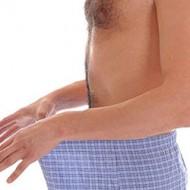 Какие симптомы молочницы у мужчин? Причины заболевания