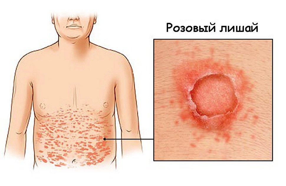 Как выглядят лишаи на теле человека