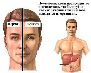 какой нормальный уровень холестерина в крови человека