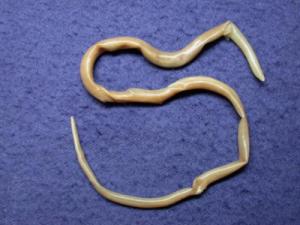 Лечение геморроидальных узлов мазью