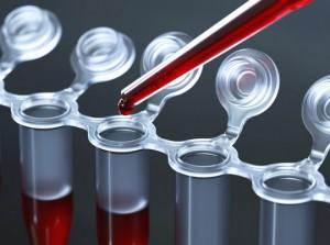 биохимический анализ крови алт что это