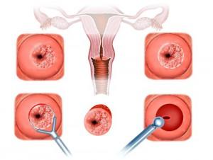 биопсия шейки матки при эрозии
