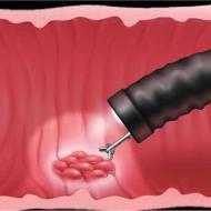 Процедура биопсии желудка: что это такое, какие заболевания помогает выявить?