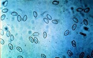 что такое соскоб на энтеробиоз