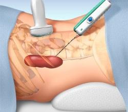 Вирусный гепатита в лечение прогноз