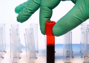 лейкоциты в норме