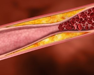 пониженные лейкоциты в крови