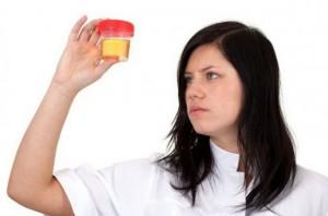 причины крови в моче у женщины