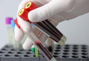 wbc лейкоциты в анализе крови