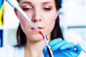 Анализ крови са 125