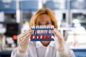 Повышенные лейкоциты в крови у женщин, причины