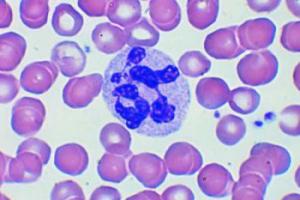 Повышенные лейкоциты в крови у женщин