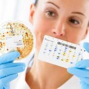 Лейкоцитарная эстераза в моче – что это значит, рассмотрим подробно!