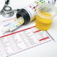 Норма количества белка в моче при беременности. Причины возникновения протеинурии.