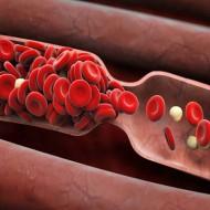 Густая кровь у мужчин и женщин: причины, симптомы и лечение препаратами и продуктами питания