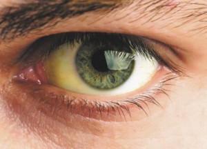 желтый белок глаз что делать