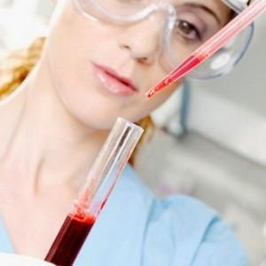 референсные значения холестерина в крови