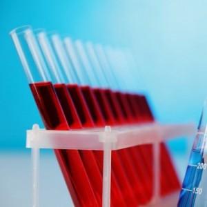 Изучение крови на ВИЧ