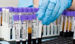 Антитела hcv обнаружены что это значит