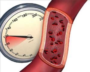 нижнее артериальное давление лечение