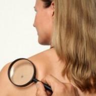 Папилломы: признаки паразитов на теле человека. Определение кожного образования