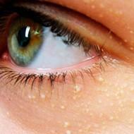 Папилломы на глазах: причины. Удаление на веке медицинским вмешательством и народными методами