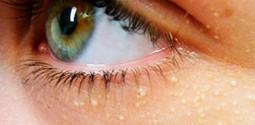 удаление папилломы на глазах