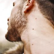 Впч: симптомы у мужчин, лечение инфекционного образования на коже
