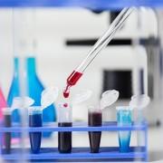 Что означает анализ крови на РЭА и для чего его нужно сдавать?