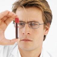 Какие бывают анализы на венерологические заболевания у мужчин? Когда их нужно сдать?