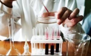 исследование крови на роэ