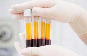 кровь на анализы pdw