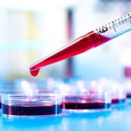 Амилаза в крови: норма, причины повышенного и пониженного уровня