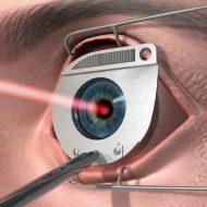 Современные техники хирургического лечения катаракты